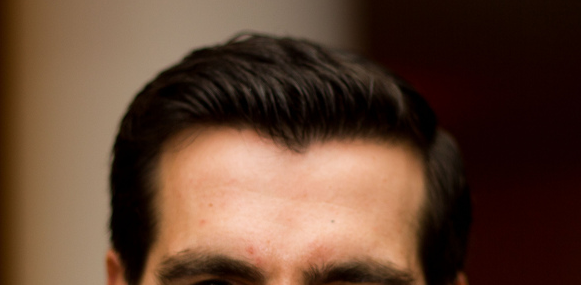 Straight Hairline Or Widows Peak Human expressing widow s peak Widows Peak Vs Straight Hairline